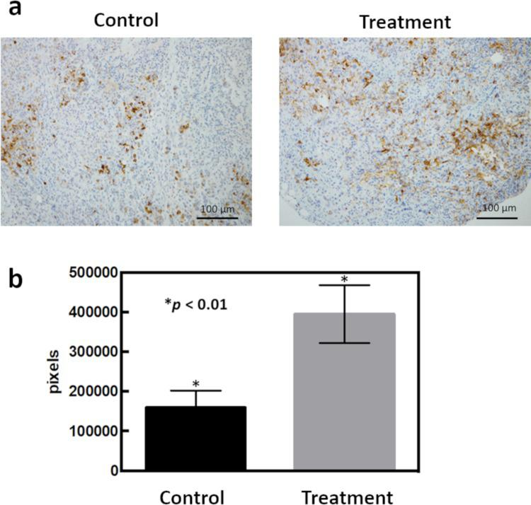 Strong OLFM4 immunostaining was detected in chemotherapy-administered PDXs. (a) Immunostaining for OLFM4 in PDXs. Control and chemotherapy-administered PDXs are shown at 200× each. (b) Analysis of the number of pixels of OLFM4-stained cells using Image J.