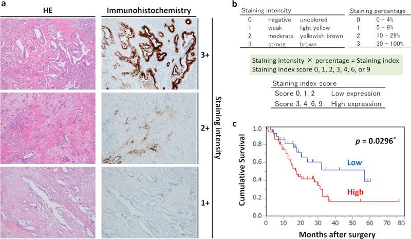 Relationship between <t>OLFM4</t> expression and prognosis. (a) Immunohistochemical staining for OLFM4 in pancreatic cancer tissues (magnification: 100×). The left and right figures are the same sample tissue blocks and correspond to staining intensity. Left: HE staining. Right: immunohistochemical staining for OLFM4. (b) Criteria for determination of OLFM4 expression levels. OLFM4 expression levels for immunostaining were determined based on the intensity of staining and percentage of stained cells. Staining intensity and staining percentage criteria are shown. (c) Kaplan-Meier survival analysis in patients with pancreatic cancer (n = 80), showing overall survival according to OLFM4 protein expression. Red line: high expression group (n = 52); blue line: low expression group (n = 28).