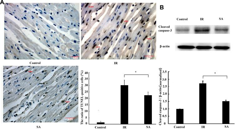 Sappanone A (SA) inhibited ischemia reperfusion (IR)-induced myocardial apoptosis. SA (20 mg/kg) was intraperitoneally administrated into rats 1 h prior to heart isolation, and then the hearts were isolated that underwent 30-min ischemia, followed by 120-min reperfusion. ( A ) Myocardial apoptosis was measured by terminal deoxynucleotidyl transferase dUTP nick end labeling staining (x400) (n=6 per group). The apoptotic cell nuclei were stained brown and the living cell nuclei were stained blue. Scale bar=20 µm. ( B ) The expression of cleaved caspase-3 was measured by Western blotting (n=3). Data are expressed as the mean ± standard deviation (SD). *P