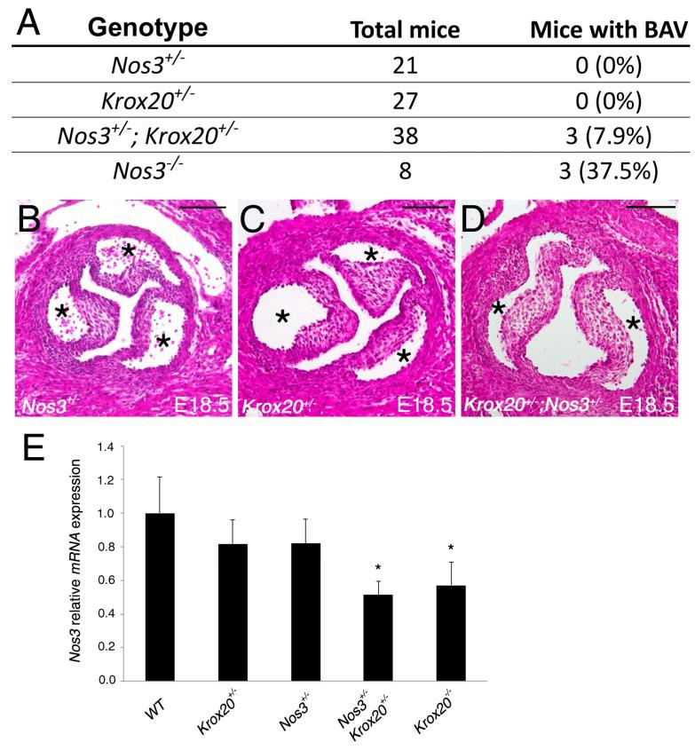 Abnormal aortic valve morphology in Krox20+/−;Nos3+/− mice. ( A ) Table depicting penetrance of bicuspid aortic valve (BAV) in Nos3+/− , Krox20+/− , Nos3+/− ; Krox20+/− and Nos3−/− mice. ( B – D ) H E images showing representative Nos3+/− and Krox20+/− with tri-leaflets aortic valve, and an example of Nos3+/− ; Krox20+/− aortic valve with 2 leaflets. Aortic valve leaflets of Nos3+/− ; Krox20+/− mice appear equal in size. ( E ) Real-time qPCR demonstrates a reduction of Nos3 at a transcriptional level in Nos3+/− ; Krox20+/− and Krox20−/− compared to wild-type embryos ( n = 5 for each genotype). qPCR experiments were performed in triplicate and expressed as mean ± SEM (* p