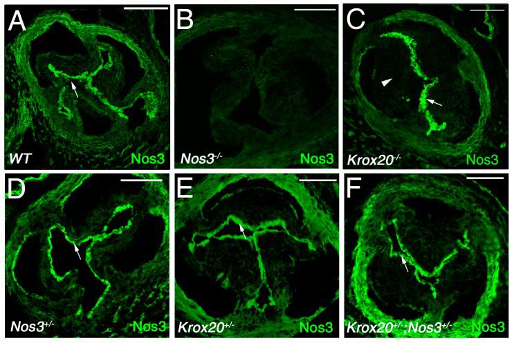 Endothelial nitric oxide synthase (Nos3) expression is altered in Krox20 deficient mice. ( A – F ) Immunohistochemistry showing Nos3 protein (green) in the aortic valve of wild-type (WT, A ), Nos3−/− ( B ), Krox20−/− ( C ), Nos3+/− ( D ), Krox20+/− ( E ), and Nos3+/− ; Krox20+/− ( F ) embryos at E18.5. Immunohistochemistry showing abundant expression of Nos3 in the valve endothelial cells (arrows). Note the reduction of Nos3 expression in the mesenchyme of Krox20−/− ( C ) aortic valve leaflets (arrowhead; compared C with A ). Scale bars: 100 μm.
