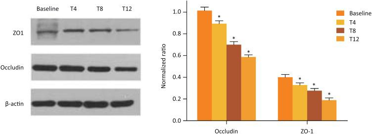The expression of ZO-1 and occludin proteins in small bowel demonstrated by western blot analysis. Levels of the indicated protein at the baseline, T4, T8 and T12.