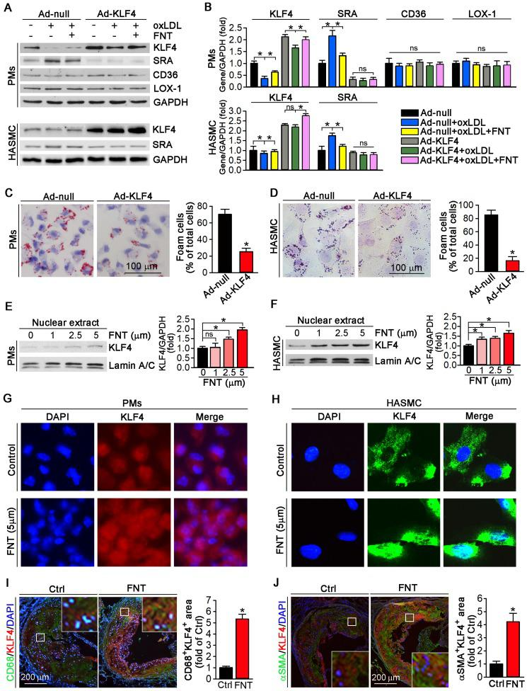 Formononetin increases KLF4 expression and nuclear translocation in PMs and HASMCs. ( A, B ) After overexpression of KLF4 by infection with Ad-KLF4, PMs and HASMCs were exposed to oxLDL in presence or absence of formononetin. Expression of KLF4, SRA, CD36 and LOX-1 protein in PMs or KLF4, SRA in HASMCs was determined by Western blot (left) followed by quantification of band density correspondingly (right), n=5. ( C, D ) PMs and HASMCs were stained with Oil Red O after overexpression of KLF4, n=5. ( E, F ) PMs and HASMCs were treated with formononetin at the indicated concentrations overnight. And then expression of KLF4 protein in nuclear extracts was determined by Western blot, respectively, n=5. ( G, H ) Expression of KLF4 protein in PMs and HASMCs was determined by immunofluorescent staining, n=5. ( I, J ) Expression of KLF4 protein in macrophages and VSMCs within plaque was determined by co-immunofluorescent staining with KLF4 and CD68 or αSMA antibodies, n=5. Data are presented as mean ± SEM, * P