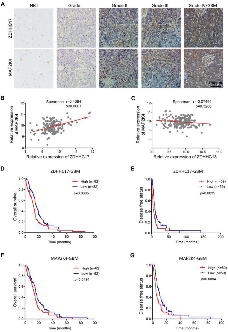 ZDHHC17 and MAP2K4 Expression Correlates with Glioma Tumor Grade and has Prognostic Significance . (A) Representative images of immunohistochemistry staining for ZDHHC17 and MAP2K4 in different grade gliomas and normal brain specimens. Scale bar, 100 µm. (B, C) Correlation between MAP2K4 and ZDHHC17 (B) or ZDHHC13 (C) in GBM using TCGA datasets. Correlation statistical significance was evaluated using a linear regression model (n = 171, r = 0.4394, p