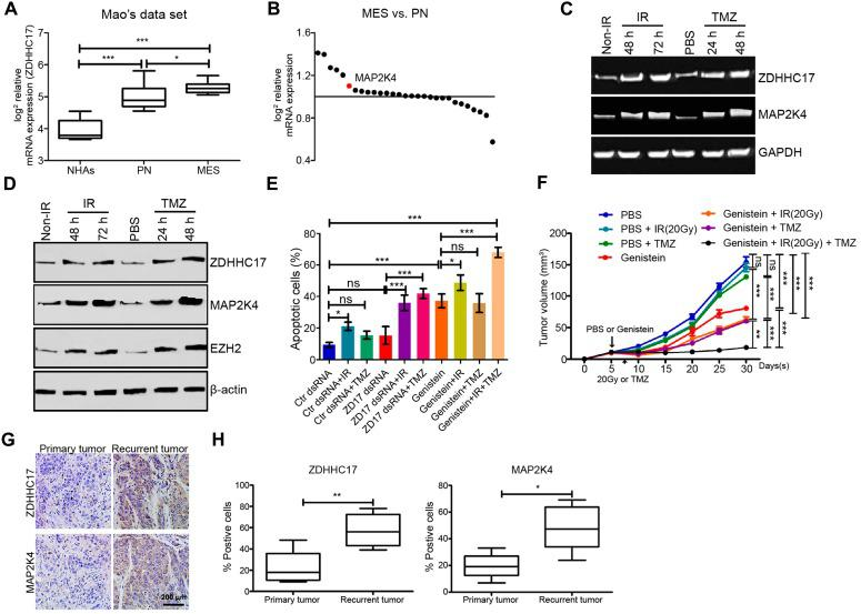 ZDHHC17-MAP2K4 Signaling Module Promotes Chemoradiotherapy Resistance in GBM Spheres. (A) mRNA expression analysis (Mao's dataset, GSE67089) of ZDHHC17 expression in mesenchymal (MES) GSCs compared to normal astrocytes, or proneural (PN) GSCs. (B) Genome-wide transcriptome microarray analysis (GSE67089) of MAPKKs showing MAP2K4 up-regulation in MES compared with PN GSCs. (C) RT-PCR for ZDHHC17 and MAP2K4 in post-radiation GSCs from U118MG (6 Gy) or temozolomide (TMZ)-treated (25 μM) versus naive GSCs. (D) Western blot for ZDHHC17, MAP2K4, and EZH2 in post-radiation GSCs from U118MG (6 Gy) or TMZ-treated GSCs (25 μM) versus naive GSCs. (E) Flow cytometric analysis for apoptosis in GSCs pre-transduced with control or ZDHHC17 dsRNA, then treated with or without genistein (2.5 μM), radiation (6 Gy), and TMZ (25 μM). (F) BALB/c mice were subcutaneously injected with GSCs from U118MG. After five days, the nude mice were treated with 20 Gy X-irradiation (4.5-4.6 Gy/min), TMZ (50 mg kg -1 two days -1 , gastric infusion), or genistein (100 mg/kg daily, tail vein injection). Tumor weight was quantified. Data represent the means ± SD from five separate experiments ( ns , not significant; ** p