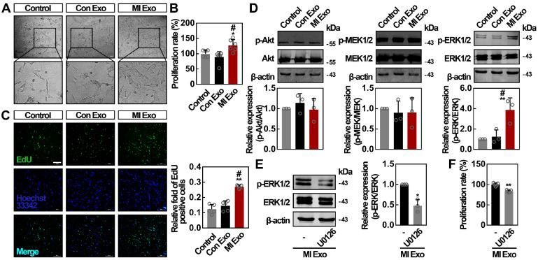 MI Exo promotes ADMSCs proliferation in vitro partly via ERK1/2 activation. ( A ) Inverted contrast phase microscopy showed that the number of ADMSCs was increased after treatment with MI Exo for 24 h compared with the results for control and Con Exo. Scale bar, 80 μm. ( B ) The proliferation rate of ADMSCs was measured using <t>CCK-8</t> assay after treatment with Con Exo and MI Exo for 24 h. Data are shown as mean ± SD. *, significantly different from control; *, p