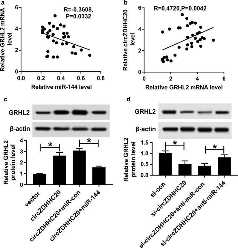 CircZDHHC20 regulated GRHL2 expression through sponging miR-144. Correlations between GRHL2 mRNA expression and miR-144 level ( a ) or circZDHHC20 level ( b ) in 26 placental tissues from PE patients using the Spearman test. c , d GRHL2 protein level by western blot in HTR-8/SVneo cells transfected with negative control plasmid (vector), circZDHHC20 overexpression plasmid (circZDHHC20), circZDHHC20 + miR-con mimic, circZDHHC20 + miR-144 mimic, si-con, si-circZDHHC20, si-circZDHHC20 + anti-miR-con or si-circZDHHC20 + anti-miR-144. * P