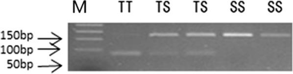 Diagnostic PCR-RFLP tests to detect the T345S mutation. The 167 bp amplicon is undigested by HpyCH4 III for homozygous TCG (mutant 345SS), and cut into two fragments of 83 bp and 84 bp for homozygous ACG (wild 345TT) that co-migrate in the agarose gel and cannot be distinguished. A combined pattern (two bands 167 bp + 83/84 bp) is displayed for heterozygotes