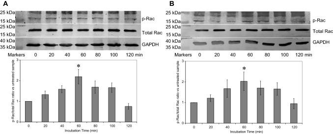 Analysis of Rac phosphorylation by western blot. Human coronary artery endothelial cells (2 × 10 5 ) were seeded out into 12-well plates and transfected with 0.5 µg of a pCMV6-Ac-tGFP or b pCMV6-Ac-TF Ala253 -tGFP (additional samples shown in Supplementary Fig. 2). The cells were incubated for 48 h to permit the expression of the recombinant proteins. Sets of cells were then activated with PAR2-AP (20 µM) and incubated for up to 120 min. The cells were then lysed and separated by 12% (w/v) SDS-PAGE and transferred onto nitrocellulose membranes. The membranes were probed with a polyclonal rabbit anti-human Rac1/2/3 antibody, diluted 1:3000 (v/v) and a rabbit monoclonal anti-human phospho-Ser71-Rac1 antibody, diluted 1:3000 (v/v) diluted in TBST. The membranes were then washed and probed with a goat anti-rabbit alkaline phosphatase-conjugated antibody diluted 1:1000 (v/v) and then visualised using the Western Blue stabilised alkaline phosphatase-substrate and recorded. All quantifications were normalised against GAPDH which was detected using a polyclonal goat anti-GAPDH antibody diluted 1:5000 (v/v) and then detected using an alkaline phosphatase-conjugated donkey anti-goat-IgG antibody diluted 1:2000 (v/v). The ratios of phosphorylated to total Rac were calculated using the ImageJ program. (n = 6; * = p