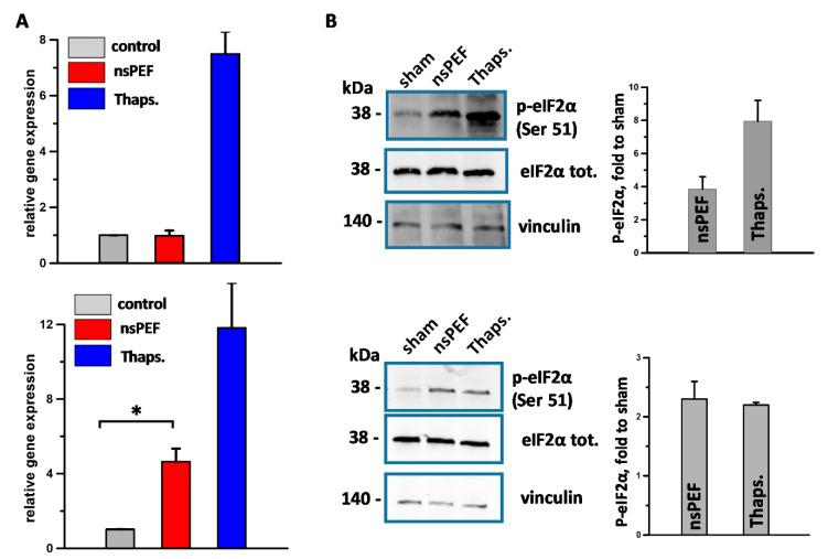 Effect of nsPEF on the activation of the endoplasmic reticulum (ER) stress sensors IRE1 ( A ) and PERK ( B ). EL-4 cells (top panels) and CT26 cell (bottom panels) were treated with iso-effective doses of 100 and 300 pulses, respectively (200 ns, 7 kV/cm, 10 Hz). Samples were collected at 5 h post treatment. In (A) the expression level of <t>XBP1</t> in both EL-4 and CT26 was measured by real-time quantitative PCR. The gene mRNA level was normalized to the housekeeping HPRT gene mRNA and is shown as relative expression. In ( B ) phosphorylation of eIF2α was measured by Western blot using an anti-phospho-eIF2α (Serine 51) antibody. Left panels show a representative image for both EL-4 (top panel) and CT26 cells (bottom panel) with eIF2α (phosphorylated and total) and the housekeeping Vinculin protein seen as a 38 and 140 kDa band, respectively. Graphs on the right are the quantifications of the p-eIF2α expressed as fold to sham. 1 µM thaspigargin (Thaps.) was used as a positive control for ER stress induction. Mean +/− s.e. n = 3 for both A and B. * p