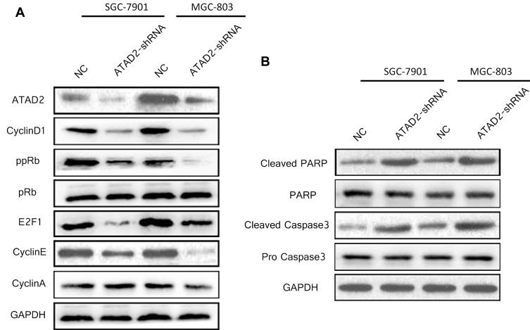 Knockdown of ATAD2 altered the expression of key cell-cycle regulatory and apoptosis-related proteins. ( A ) Western blot analysis of key cell-cycle regulatory proteins cyclin D1, phosphorylated Rb (ppRb), total Rb proteins (pRb), E2F1, cyclin E and cyclin A in SGC-7901 and MGC-803 cells transfected with either pLV-ATAD2 shRNA or pLV-control. ( B ) Western blot analysis of the apoptosis-related proteins cleaved-PARP, PARP, cleaved-Caspase 3, Caspase 3 in SGC-7901 and MGC-803 cells transfected with either pLV-ATAD2 shRNA or pLV-control. GAPDH was used as a loading control.