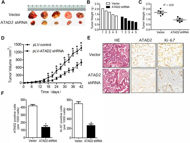 Knockdown of ATAD2 suppresses tumour growth in vivo. ( A ) Tumour formation in nude mice 6 weeks after injection with SGC-7901 cells transfected with pLV-ATAD2 shRNA or pLV-control. ( B, C ) Weights of the generated tumours by SGC-7901 cells transfected with pLV-ATAD2 shRNA or pLV-control 6 weeks after the initial injection. Data was shown as means ± SD. ( D ) Growth curves of generated tumors by SGC-7901 cells transfected with pLV-ATAD2 shRNA or pLV-control. Volumes of the tumours were measured every 3 days for 6 weeks. ( E, F ) IHC analysis of 6 pLV-ATAD2 shRNA- and 6 pLV-control-generated tumours 6 weeks after injection. Representative fields are shown (×200). For each generated tumour, five fields were randomly selected according to semi-quantitative scales. ATAD2- and Ki67-positive cells per 1000 cells were counted by three independent experienced pathologists. The bar graph shows average expression levels of ATAD2 and Ki67 of pLV-ATAD2 shRNA- and pLV-control-generated tumours. Data were shown as means ± SD; (* P