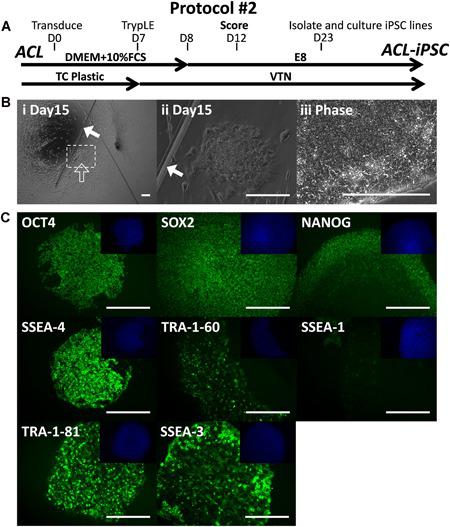 Generation of ACL‐iPSC‐SW157A from anterior cruciate ligament (ACL) by scoring the culture on day 12 (protocol#2). (A) Isolated ACL cells were subject to the reprogramming protocol#2. (B) Successful reprogramming of ACL to ACL‐iPSC‐SW157A. (Bi–Bii) scoring with a pulled glass pipette (filled arrow) prevented the entire well from rolling up and allows putative induced pluripotent stem cell (iPSC) colonies to grow in the space provided (open arrow), (Biii) phase contrast image of isolated ACL‐iPSC‐SW157A. (C) Positive antibody staining of established passage 22 ACL‐iPSC‐SW157A for the pluripotency‐associated markers OCT‐4, SOX2, NANOG, SSEA‐4, TRA‐1‐60, TRA‐1‐81, SSEA‐3, and lack of early differentiation marker SSEA‐1. 4′,6‐diamidino‐2‐phenylindole (DAPI) nuclear staining shown in the top right quadrant for each. Eight pluripotent colonies were identified (four grown into established lines) from reprogramming of 50,000 cells, representing the efficiency of 0.020%. Scale bars represent 200 μm. [Color figure can be viewed at wileyonlinelibrary.com]