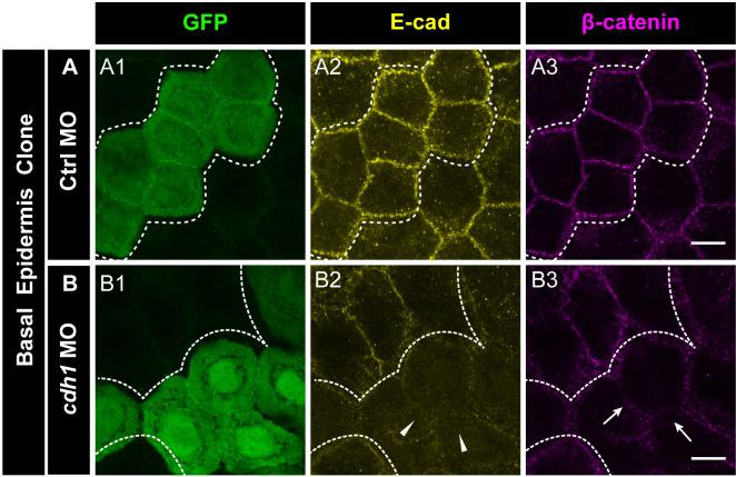 e-cadherin knockdown results in the loss of β-catenin localisation. Immunostainings of embryos harbouring Ctrl MO ( A ) or cdh-1 MO ( B ) clones marked by GFP ( A1, B1 ) showing E-cadherin ( A2, B2 ) and β-catenin ( A3, B3 ) localisation. Arrow heads ( B2 ) and arrows ( B3 ) mark the loss of E-cadherin and concurrent reduction in β-catenin localisation in morphant cells. Dotted lines demarcate the clones. Scale bar represents 10 µm ( A3, B3 ).