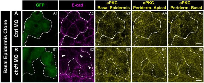 e-cadherin knockdown in the basal epidermis does not have any effect on aPKC localisation in the periderm or basal epidermis. Immunostaining of embryos having Ctrl MO ( A ) and cdh1 MO ( B ) clones marked by GFP ( A1, B1 ) and showing e-cadherin knockdown ( A2, B2 ), aPKC localisation in the basal epidermis ( A3, B3 ) and the apical domain ( A4, B4 ) as well as basal domain of the peridermal cells ( A5, B5 ) lying above the basal epidermal clone. Note that there is no effect on aPKC localisation in the periderm when e-cadherin is knocked down in the basal epidermis. Dotted lines mark the basal epidermal clone and the peridermal region above the clone. Arrowheads (in B2) mark the loss of E-cadherin in the morphant clone. Scale bar equals to 10 µm ( A5, B5 ).