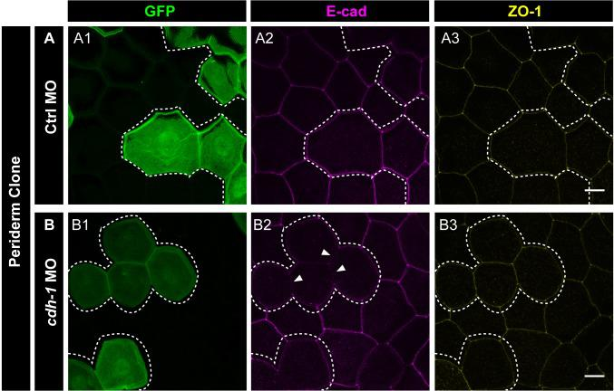 e-cadherin knockdown has no effect on localisation of ZO-1. Confocal micrographs of embryos with Ctrl MO ( A ) and cdh1 MO ( B ) clones labelled with GFP ( A1, B1 ) and showing localisation of E-cadherin ( A2, B2 ) and ZO-1 ( A3, B3 ). Note that there is no effect of loss of e-cadherin function on ZO-1 localisation. Dotted lines represent the position of the peridermal clones. Arrowheads mark the reduction in E-cadherin localisation in morphant cells ( B2 ). Scale bar is equivalent to 10 µm ( A3, B3 ).