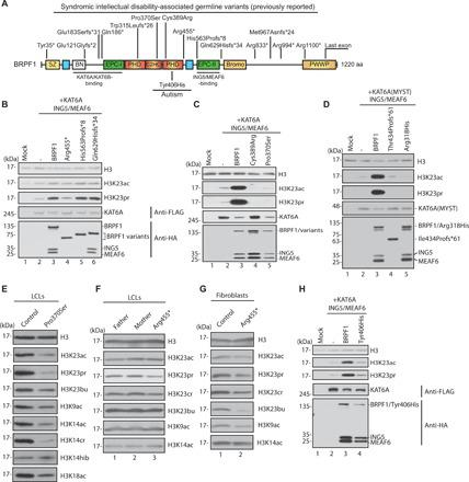 Functional impact of BRPF1 variants associated with neurodevelopmental disorders. ( A ) Cartoon representation of variants previously identified in 29 individuals with syndromic intellectual disability ( 12 , 33 – 36 ) or autism ( 43 ). See Fig. 1A for domain nomenclature. ( B ) Nucleosomal acylation assays. HeLa oligonucleosomes were used for acylation by the affinity-purified wild-type and mutant complexes. The complexes were prepared for assays as in Fig. 1B . See fig. S2D for immunoblotting analysis of the soluble extracts. ( C ) Nucleosomal histone acylation assays. Recombinant mononucleosomes were used for acylation by the affinity-purified wild-type and mutant complexes. ( D ) Assays were carried out similarly as in (C), and the MYST domain of KAT6A was used. See fig. S2E for immunoblotting analysis of the soluble extracts. ( E ) Immunoblotting to detect histone H3 acylation in extracts from control and the Pro370Ser LCLs. ( F ) Immunoblotting to detect histone H3 acylation in protein extracts from the control and Arg455* LCLs. ( G ) Immunoblotting to detect histone H3 acylation in extracts from the control and Arg455* fibroblasts. ( H ) Assays were carried out similarly as in (C), but the Tyr406His variant was analyzed. See fig. S2F for immunoblotting analysis of the soluble extracts.