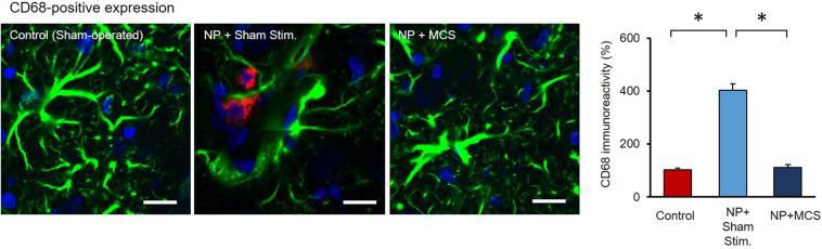 CD68 expression in the ZI of the rats. In order to identify protein expression by microglia, brain slices were labeled with CD68 (red), GFAP (green) antibodies, and DAPI (blue). CD68-positive signals were compared in each group. NP + MCS rats had no effect on the morphological change in CD68-positive signal. Frequent co-occurrence of astrocytes and microglial cells was observed in NP + Sham stim. rats. (Scale bars = 20 µm).