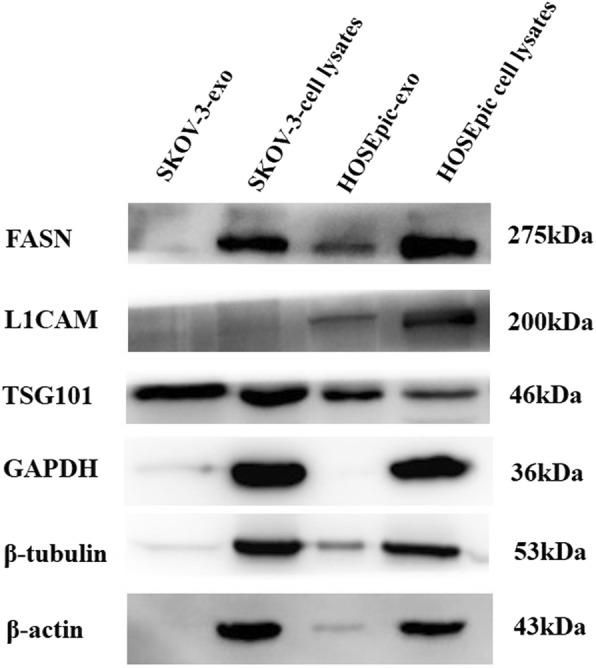 Validation of the MS/MS results by Western blotting. Western blot analyses show increased intensities for exosomal marker (TSG101) and lower intensities for negative control markers (β-Actin, β-tubulin and <t>GAPDH)</t> in exosomes. <t>FASN</t> and L1CAM was only verified in exosomes derived from HOSEPiC as identified by MS/MS