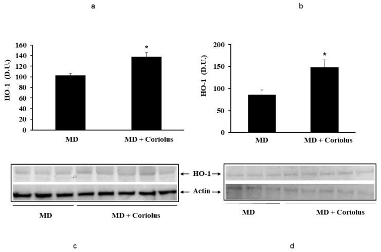 Heme oxygenase-1 levels in lymphocytes and in plasma from MD patients. Samples from MD patients were assayed for heme oxygenase-1 (HO-1) by western blot as described in Materials and Methods. A representative immunoblot is shown. β-actin has been used as loading control ( c , d ). The bar graph shows the densitometric evaluation ( a , b ) and values are expressed as mean ± SEM of independent analyses on 22 patients (MD plus Coriolus biomass) and, respectively, on 18 patients (MD alone), per group. * p