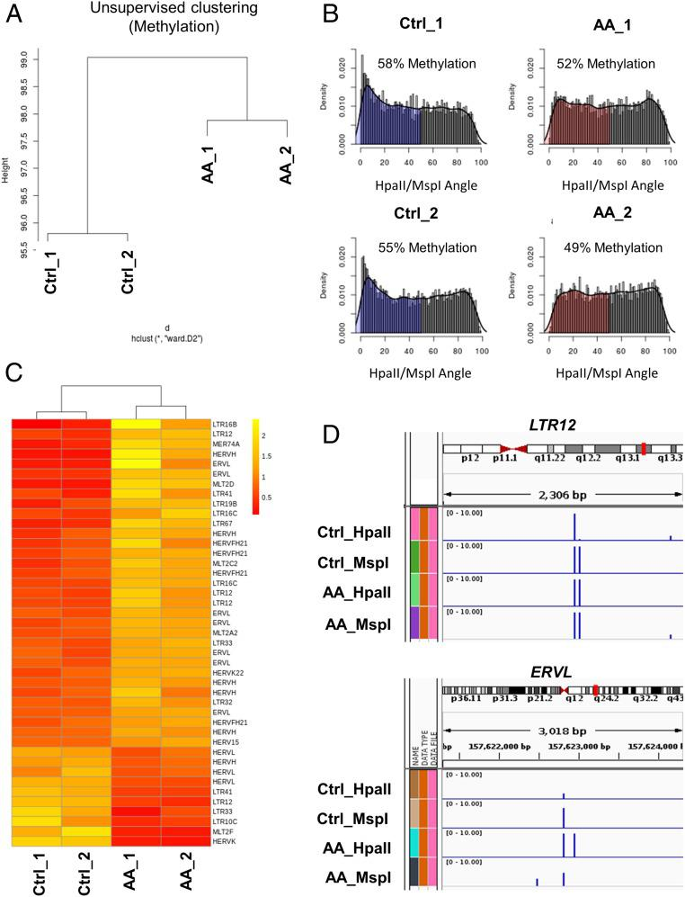 AA treatment leads to genomewide demethylation and enhanced endogenous retroviral expression in lymphoma cells. ( A ) Global methylation analysis was conducted using the HELP assay on OCI-Ly1 cells treated with control (Ctrl) or 1 mM AA for 6 h; cells harvested 24 h after treatment ( n = 2 replicates per group). Genomewide unsupervised clustering was performed on the resulting cytosine methylation data. Ward clustering shows global methylation changes are induced by AA treatment. The 2 AA-treated samples clustered separate from the 2 Ctrl-treated samples, with consistency between the 2 samples of each treatment. ( B ) Genomewide plot of HELP cytosine methylation (based on HpaII/MspI angle) in OCI-Ly1 Ctrl and AA samples. A reduction in the loci with cytosine methylation (shaded regions; HpaII/MSPI angle