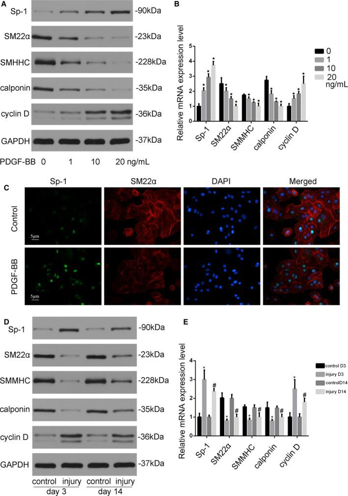 Sp‐1 (specificity protein 1) was upregulated in smooth muscle cell (SMC) phenotypic modulation both in vitro and in vivo. A , Platelet‐derived growth factor‐BB (PDGF‐BB) induced Sp‐1 expression and attenuated contractile protein expression in SMCs. SMCs were starved in DMEM without fetal bovine serum (FBS) for 24 h before being treated with vehicle or PDGF‐BB (1, 10, and 20 ng/mL). Western blotting was performed to examine the expression of Sp‐1, SM22α, SM myosin heavy chain (SMMHC), calponin, and proliferation marker cyclin D. B , Quantitative analysis of mRNA expression. * P