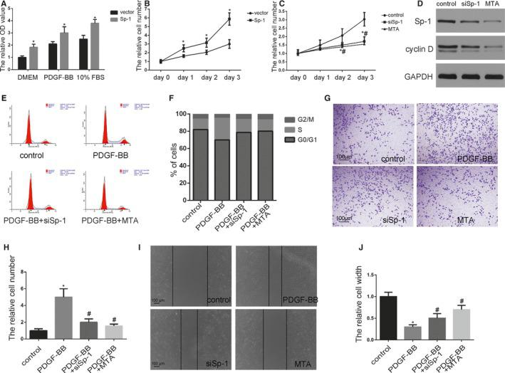 Sp‐1 (specificity protein 1) promoted smooth muscle cell (SMC) proliferation and migration. A , SMCs were transfected with Sp‐1 plasmid which expressed a high level of Sp‐1. Proliferation of SMCs was measured in a variety of cell culture media using 4‐5‐dimethyl‐2‐thiazolyl‐2‐5‐diphenyl‐2H‐tetrazolium bromide assay as indicated. * P