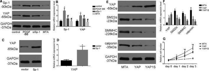 YAP (Yes‐associated protein) was involved in Sp‐1 (specificity protein 1)‐mediated SMC phenotypic modulation. A and B , Platelet‐derived growth factor‐BB (PDGF‐BB, 20 ng/mL for 24 h) induced YAP protein ( A ) and mRNA ( B ) expression in parallel with Sp‐1 expression. Additional siSp‐1 transfected or Mithramycin A (MTA) treatment could reverse this process. * P