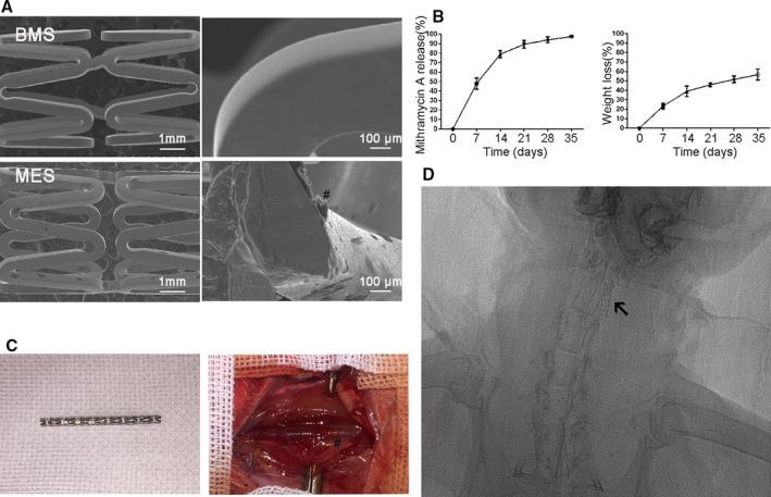 Fabrication of Sp‐1 (specificity protein 1) inhibitor Mithramycin A (MTA)‐eluting stent and stent implantation. A , Scanning electron microscope (SEM) images of BMS and MTA‐eluting stent (MES). # Indicates the coating surface of the stents, which was smooth and uniform. B , Cumulative release profile of Mithramycin A from MES. C , Stents were successfully implanted in the rabbit carotid model. # Indicates the location of the stent. D , Postoperative radiograph demonstrates no stent migration and fracture in the following time. Arrow in the figure indicates the location of the stent.