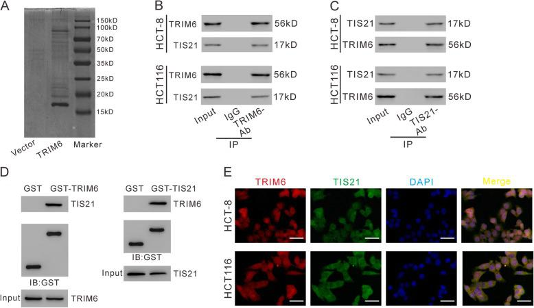 TRIM6 interacted with TIS21 in CRC cells. a , pCMV-Tag2-TIRM6 or pCMV-Tag2 vector was transfected into 293 T cells, and 48 h later, cell lysates were prepared and subjected to immunoprecipitation (IP) experiments with anti-FLAG beads. After elusion with FLAG peptide, the immunoprecipitated protein complexes were resolved on SDS-PAGE, and stained with Coomassie Brilliant Blue. B, C, IP was carried out with TRIM6 antibody (TRIM6-Ab) /IgG ( b ) or TIS21 antibody (TIS21-Ab) /control IgG ( c ), and then western blotting was performed to analyze specific associations between TRIM6 and TIS21 in HCT-8 and HCT116 cells. D-E, GST pull-down assay. HCT-8 cells were lysed and incubated with GST, GST-tagged TRIM6 ( d ) and GST-tagged TIS21 ( e ) bound to glutathione beads, respectively. Proteins were detected as indicated. E, immunofluorescence staining of TRIM6 (Red) and TIS21 (Green) in HCT-8 and HCT116 cells. DAPI (blue) was used to label nuclei. Scale bar: 50 μm