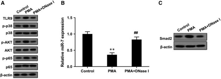TLR9 signalling pathway, miR‐7 and Smad2 expressions in NET‐treated LFs. LFs were divided into control group, PMA group and PMA+DNase I group. A, Western blot assay showed that TLR9 protein level and phosphorylation levels of its downstream molecules p38, AKT and p65 were up‐regulated in PMA group, whereas PMA+DNase I decreased these expressions. B, miR‐7 expression level was down‐regulated in PMA group, whereas PMA+DNase I increased miR‐7 expression. C, Smad2 protein level was up‐regulated in PMA group, whereas PMA+DNase I inhibited Smad2 expression. ** P