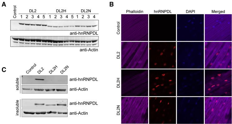 hnRNPDL Isoform 2 Disease-Causing Mutation Effects in Drosophila (A) Expression levels of DL2 and disease-causing mutations (DL2N and DL2H) in transgenic flies. Thoraxes of adult flies were processed for western blot analysis with an antibody against hnRNPDL. Actin was blotted as a loading control. (B) Adult flies were dissected to expose the dorsal longitudinal indirect fly muscle (DLM) and stained with Alexa Fluor 647-phalloidin (purple), hnRNPDL (red), and DAPI (blue). (C) Thoraxes of adult flies were dissected. Sequential extractions were performed to examine the solubility profile of hnRNPDL.
