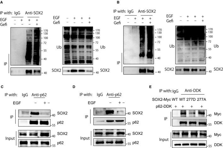 EGFR activation reduces SOX2 ubiquitination and perturbs its association with p62. A, CAL‐27 cells were stimulated with EGF (100 ng/mL) for 1 h. Before EGF stimulation, cells were pretreated with gefitinib (10 μmol/L) for 24 h. Whole cell lysates were immunoprecipitated with an anti‐SOX2 antibody, and the ubiquitination of SOX2 was evaluated with immunoblotting. B, SCC‐15 cells were stimulated with EGF (100 ng/mL) for 1 h. Before EGF stimulation, cells were pretreated with gefitinib (10 μmol/L) for 24 h. Whole cell lysates were immunoprecipitated with an anti‐SOX2 antibody, and the ubiquitination of SOX2 was evaluated with immunoblotting. C, Cell lysates from CAL‐27 cells with or without 1 hour of EGF (100 ng/mL) treatment were immunoprecipitated with an anti‐p62 antibody and blotted with the indicated antibody. D, Cell lysates from SCC‐15 cells with or without 1 hour of EGF (100 ng/ml) treatment were immunoprecipitated with an anti‐p62 antibody and blotted with the indicated antibody. E, Cell lysates from HEK293T cells transfected with the indicated plasmids were precipitated with an anti‐DDK antibody and blotted with an anti‐Myc antibody