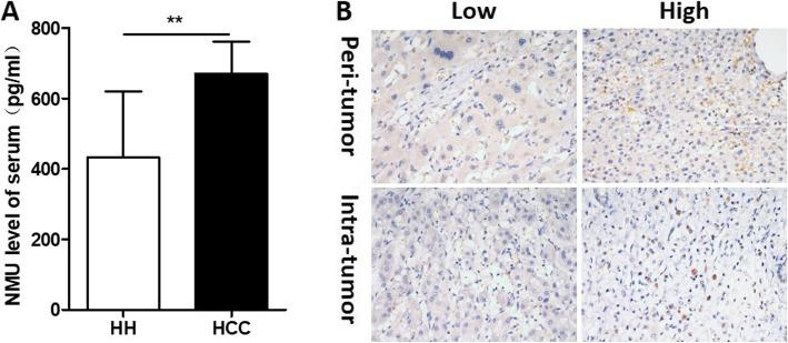 IL-25 is highly expressed in HCC patients. a The level of NMU were detected by ELISA in serum of hepatic hemangioma patients ( n = 10) and HCC patients ( n = 10). b Immunohistochemistry (IHC) staining was performed in a tissue microarray consisted of 228 HCC peri- and intra-tumor tissue, NMU representative IHC images are shown. Bar, 20 μm. ** p