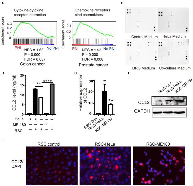 CCL2 is expressed in DRGs and SCs. (A) GSEA results shows the correlation of PNI and cytokine and cytokine receptor interaction in colon cancer as well as PNI and the chemokine receptor in prostate cancer. NES normalized enrichment score, FDR false discovery rate. (B) Cytokine array of DRG conditioned medium, HeLa conditioned medium, coculture medium of DRG and HeLa, with DMEM media as a control, identifying the expression of CCL2. (C–F) ELISA, RT-PCR, WB, and immunofluorescence analyses revealed that the CCL2 expression of RSC increased after cocultivation with HeLa and ME-180 cells (200× magnification, scale bar, 50 μm). * P