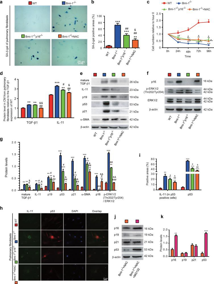 NAC treatment inhibited cell senescence and TIME signaling in Bmi-1 −/− more than in Bmi-1 −/− p16 −/− pulmonary fibroblasts. Pulmonary fibroblasts from 7-week-old WT, Bmi-1 −/− , Bmi-1 −/− p16 −/− , and NAC-treated Bmi-1 −/− ( Bmi-1 −/− + NAC) mice. a Representative micrographs of cells stained cytochemically for SA-β-gal. b Percentage of SA-β-gal-positive areas relative to the total areas. c Third-passage fibroblast proliferation was determined by CCK-8 assays and spectrophotometry at 450 nm. Cell number was determined at the indicated hours relative to the cell number at hour 0. d TGF-β1 and IL-11 concentrations were detected in conditioned medium (CM) by ELISA and assessed by densitometric analysis relative to that of WT CM. e , f Western blots for mature TGF-β1, IL-11, p19, p53, p21, α-SMA, p16, pERK1/2 (Thr202/Tyr204), and ERK1/2. β-actin was used as the loading control. g Protein expression relative to β-actin was assessed by densitometric analysis. h Representative micrographs showing immunofluorescence for IL-11 and p53, with DAPI staining the nuclei. i Percentage of IL-11-positive areas (in p53-positive cells) or p53-positive areas relative to the total area assessed. Six biological replicates were used per experiment. Values are the means ± SEM of six determinations. * P