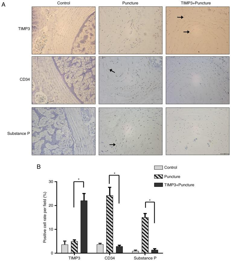 TIMP3, CD34 and substance P expression in rat NP tissue. Rats were percutaneously punctured with a 21G needle in coccygeal vertebra (puncture and TIMP3+puncture group). For TIMP3+puncture group, rats were injected with adenovirus vector (1×10 9 pfu/level) immediately after puncture. At day 28 after puncture, nucleus pulposus (NP) tissues were isolated for immunohistochemical staining. (A and B) Immunohistochemical staining was performed to measure TIMP3, CD34 and substance P expression in rat NP tissue. Overexpression of TIMP3 could reduce CD34 and substance P expression in NP tissue compared with the puncture group. Black arrow, positive staining. Data are presented as the mean ± SD. *P