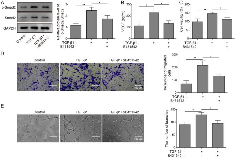 TGF-β1 promotes angiogenesis in preosteoblasts through promoting SMAD2 phosphorylation. (A) MC3T3-E1 cells were treated with TGF-β1 or TGF-β1 + SB431542, and the protein expression levels of SMAD2 and p-SMAD2 were detected and semi-quantified using western blotting. GAPDH served as a loading control. Statistical analyses are given in the bar charts. (B) MC3T3-E1 cells were treated as described in (A) and protein expression levels of VEGF in the supernatants were detected by ELISA. (C-E) MC3T3-E1 cells were treated with TGF-β1 or TGF-β1 + SB431542 and subsequently co-cultured with HUVECs. (C) Cell viability of these HUVECs was detected using the MTT assay. (D) The migratory ability of these HUVECs were detected using a Transwell assay. Representative micrographs of HUVECs under each condition are presented. Scale bar=100 µm. (E) The ability of the HUVECs under each condition to undergo angiogenesis were analyzed using an angiogenesis assay. Representative micrographs of HUVECs under each condition are presented. Scale bar=100 µm. Data are presented as the mean ± SD. *P