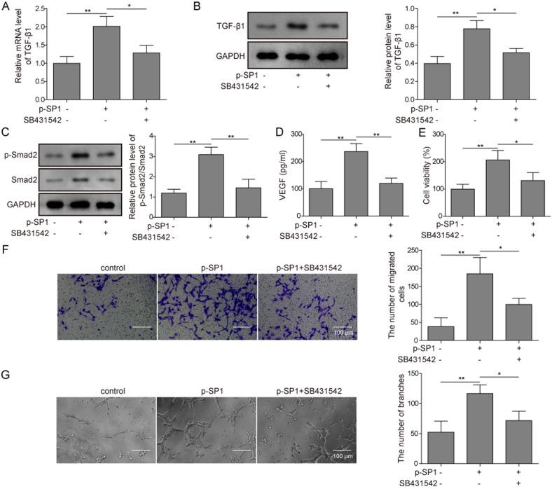 SP1 promotes angiogenesis in preosteoblasts through activating the TGF-β1/SMAD2 pathway. (A and B) MC3T3-E1 cells were transfected with p-SP1 overexpression vector and co-treated with SB431542. (A) mRNA and (B) protein expression levels of TGF-β1 were detected by reverse transcription-quantitative PCR and western blotting, respectively. (C) MC3T3-E1 cells were transfected with p-SP1 and co-treated with SB431542 and the protein expression levels of SMAD2 and p-SMAD2 were detected and semi-quantified using western blotting. GAPDH served as the loading control. (D) MC3T3-E1 cells were transfected with p-SP1 and co-treated with SB431542 and the VEGF concentration in supernatants were detected using ELISA. (E-G) MC3T3-E1 cells were transfected with p-SP1 and co-treated with SB431542, and co-cultured with HUVECs. (E) The cell viability of HUVECs under each condition was detected using an MTT assay. (F) Migratory or (G) angiogenic ability of HUVECs under each condition was assessed by the Transwell assay and angiogenesis assay, respectively. Representative micrographs are presented for HUVECs under each condition. Scale bar = 100 µm. Data are presented as the mean ± SD. *P