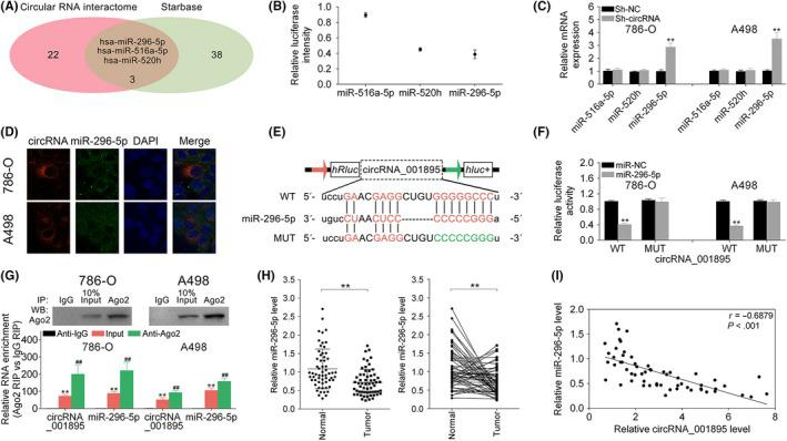 Negative correlation between hsa_circ_001895 and microRNA (miR)‐296‐5p. A, Potential binding targets of hsa_circ_001895 predicted by CircInteractome (circular RNA interactome) and starBase. B, Relative intensity of miR‐516a‐5p, miR‐520h and miR‐296‐5p in HEK293 cells. C, Influence of hsa_circ_001895 on miR‐516a‐5p, miR‐520h and miR‐296‐5p expression in 786‐O and A498 cells detected by qRT‐PCR. D, Subcellular localization of hsa_circ_001895 and miR‐296‐5p in 786‐O and A498 cells by RNA‐FISH. E, Wild‐type and mutant binding sites of miR‐296‐5p in hsa_circ_001895. F, Influence of miR‐296‐5p mimics on luciferase activities of pmirGLO‐wt‐hsa_circ_001895 or pmirGLO‐mut‐hsa_circ_001895 in 786‐O and A498 cells detected by qRT‐PCR. G, Enrichment of hsa_circ_001895 and miR‐296‐5p in Ago2‐containing beads of 786‐O and A498 cells. H, Expression of miR‐296‐5p in clear cell renal cell carcinoma (ccRCC) tissues and adjacent noncancer tissues detected by qRT‐PCR (N = 60). I, Negative correlation between miR‐296‐5p and hsa_circ_001895 in ccRCC patients. **sh‐hsa_circ_001895 vs sh‐NC, miR‐296‐5p mimics vs miR‐NC, Input vs Anti‐IgG, Tumor vs Normal tissues, P