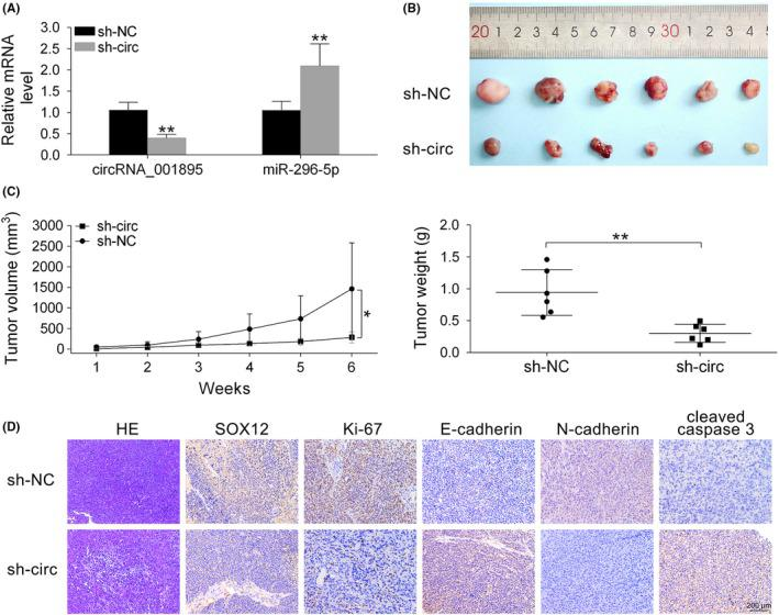 Hsa_circ_001895 knockdown inhibited in vivo clear cell renal cell carcinoma (ccRCC) tumor growth. A, Influence of sh‐hsa_circ_001895 on hsa_circ_001895 and microRNA (miR)‐296‐5p expression in mice intratumorally injected with lentiviral vector with hsa_circ_001895 knockdown or the negative control (sh‐NC). B, Effect of sh‐hsa_circ_001895 on ccRCC tumor growth in xenograft tumor mice. C, Influence of sh‐hsa_circ_001895 on tumor volume and weight. D, H E staining shows morphological features of ccRCC tissues, and immunohistochemical staining was used to determine expression of SOX12, Ki‐67, E‐cadherin, N‐cadherin and Cleaved caspase 3 affected by sh‐hsa_circ_001895. Black bar, 200 μm. *, **sh‐hsa_circ_001895 vs sh‐NC, P