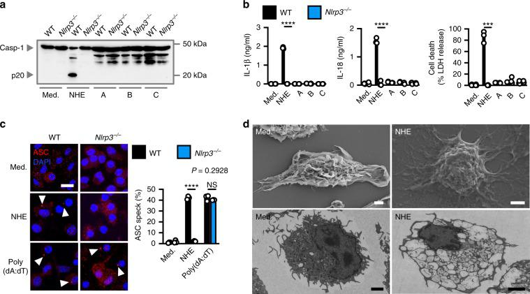 NHE activates the NLRP3 inflammasome. a Immunoblot analysis of caspase-1 of WT or Nlrp3 −/− BMDMs left untreated (Med.) or LPS-primed and assessed 3 h after treatment with recombinant NHE, or with the individual NHE subunits; b release of IL-1β and IL-18, and death of WT or Nlrp3 −/− BMDMs as treated in a . c , Immunofluorescent ASC speck analysis (red) in WT or Nlrp3 −/− BMDMs left untreated or LPS-primed and assessed 3 h after stimulation with NHE or 5 h after transfection with poly(dA:dT). Quantification of ASC specks as a percentage of total cells (DAPI). At least 200 cells from each genotype were assessed. Arrowheads indicate ASC specks. d Scanning electron microscopy analysis (top) or transmission electron microscopy analysis (bottom) of WT BMDMs left untreated or LPS-primed and assessed 3 h after treatment with NHE. Scale bar, 12 μm c , 2 μm d . NS, not significant, *** P