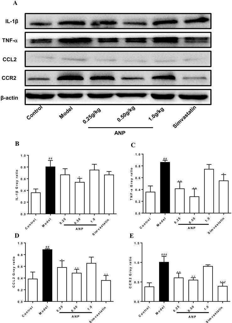 Effect of ANP on protein expression of IL-1β, TNF-α, CCL2 and CCR2 in the aorta. (A) Western blotting analysis of IL-1β, TNF-α, CCL2, and CCR2. (B) Semi-quantitative analysis of IL-1β protein. The original blot images of IL-1β, TNF-α were shown in Supplementary Figure S4(b) and Figure S4(c) . (C) Semi-quantitative analysis of TNF-α protein, (D) Semi-quantitative analysis of CCL2 protein, (E) Semi-quantitative analysis of CCR2 protein. Compared with control group, ## p