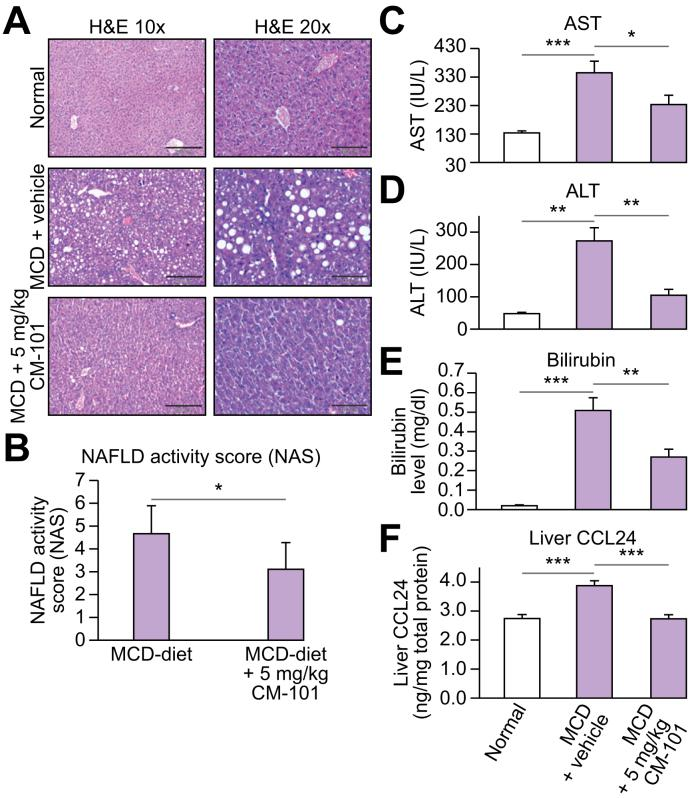 Anti-CCL24 antibody (CM-101 (D8)) reduced NASH-related pathologies in the MCD-diet mouse model (treatment mode). (A) Representative H E stained histological liver samples. Healthy liver from chow diet-fed mice (upper panels), MCD-fed WT mice (middle panels) and MCD + 5 mg/kg CM-101 (D8) treated group (bottom panels). (B) Histological scoring, comparisons of the 2 groups fed with the MCD diet (MCD diet and MCD diet + 5 mg/kg CM-101 (D8), n = 8). (C-E) AST, ALT and bilirubin levels in the MCD-induced NASH model compared to MCD + 5 mg/kg CM-101 (D8) treated group. (F) CCL24 levels in the liver measured by ELISA using total protein liver lysates from chow diet-fed mice, MCD-fed WT mice and MCD + 5 mg/kg CM-101 (D8) treated mice. Results are presented as average ±SE; Student's t test; * p ≤0.05, ** p ≤0.01, *** p ≤0.001. ALT, alanine aminotransferase; AST, aspartate aminotransferase; MCD, methionine-choline deficient; NAS, non-alcoholic fatty liver disease activity score; WT, wild-type.