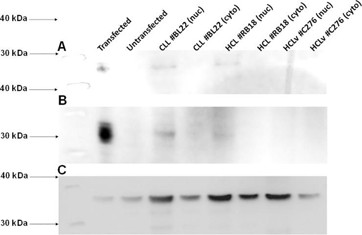 Western blot for Myf6 protein in HCL and CLL cells. Nylon + (A) and PVDF (B) membranes were stained with murine Mab SC-514379 followed by <t>anti-mouse-HRP.</t> In C, PVDF was stained with <t>polyclonal</t> anti-GAPDH antibody followed by anti-mouse-HRP. Lanes include Myf6-transfected (lane 1) and untransfected (lane 2) 293 cells, nuclear and cytoplasmic fractions for CLL patient BL22 (lanes 3 4, respectively), HCL patient BL18 (lanes 5 6), and HCLv patient C276 (lanes 7 8). In each lane, 30 ug of total protein was added, except less in A lane 1 to obtain bands of similar intensity.