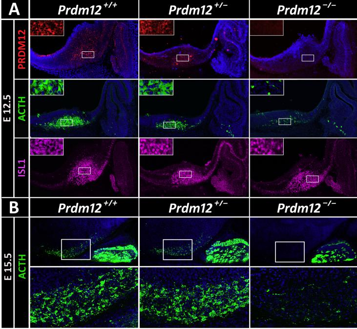 Hypothalamic Pomc expression is impaired in Prdm12 knockout mice. (A) Immunofluorescence analysis using anti-PRDM12 (red) and anti-ACTH (green) antibodies in sagittal cryosections of wild-type , heterozygous Prdm12 +/− , and homozygous Prdm12 −/− E12.5 mouse embryos reveal that the absence of PRDM12 prevents Pomc expression in the developing hypothalamus. ISL1 immunofluorescence (magenta) labels the neurons present in the mantle zone where Pomc is normally expressed. Insets are magnified views of the indicated boxes. (B) At E15.5, hypothalamic POMC immunolabeled neurons continued to be negligible in Prdm12 knockout mice. Bottom, magnified views of the hypothalamic areas embedded in the figures above.