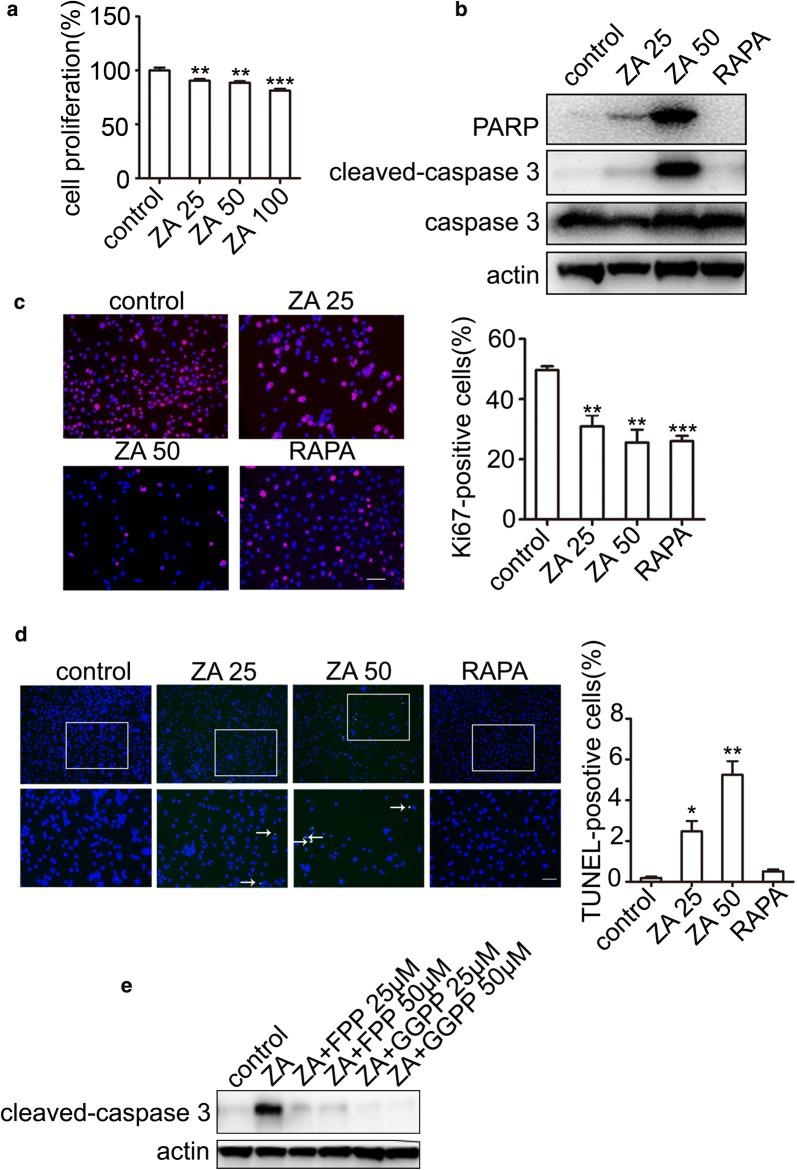 ZA induces TSC2-null cell apoptosis by GGPP. a MTT assay of TSC2-null cells treated with control, as well as 25, 50, and 100 μM ZA. b Western blot analysis after treatment with ZA (25 and 50 μM, respectively; and 20 nM RAPA for 24 h) in TSC2-null cells. c Immunostaining of Ki67 after treatment with ZA (25 and 50 μM; and 20 nM RAPA for 24 h). Immunofluorescence staining was performed and analyzed in independent 3 experiments. d Apoptosis of TSC2-null cells treated with ZA assayed using the <t>DeadEnd™</t> Fluorometric <t>TUNEL</t> System. The green dots represented apoptotic cells, and DAPI (blue) indicated cell nuclei. Scar bar, 100 and 200 μm, respectively. e Immunoblotting analysis of apoptosis marker (cleaved-caspase3) after treatment with ZA alone, the combination of ZA and FPP, and the combination of ZA and GGPP, respectively, for 24 h. The experiment was performed for three times. All data were presented as mean ± SEM. Compared with the control group, ** P