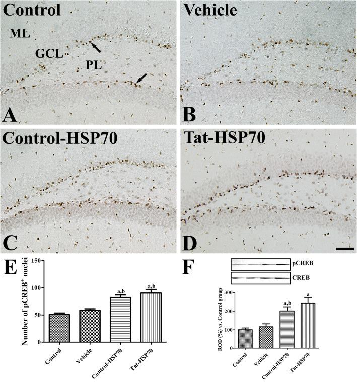 Immunohistochemistry for <t>pCREB</t> in the dentate gyrus of control ( a ), vehicle- ( b ), control-HSP70- ( c ), and Tat-HSP70-treated ( d ) mice. In all groups, pCREB-positive nuclei (arrows) are mainly observed in the subgranular zone of the dentate gyrus. Note that pCREB-positive nuclei are strongly observed in the dentate gyrus of Tat-HSP70-treated mice. GCL, granule cell layer; ML, molecular layer; PL, polymorphic layer. Scale bar = 50 μm. e The number of pCREB-positive nuclei per section for each group are shown and f values from western blot analysis is expressed as a ratio of pCREB and <t>CREB</t> immunoblot band in control group ( n = 5 per group; a P