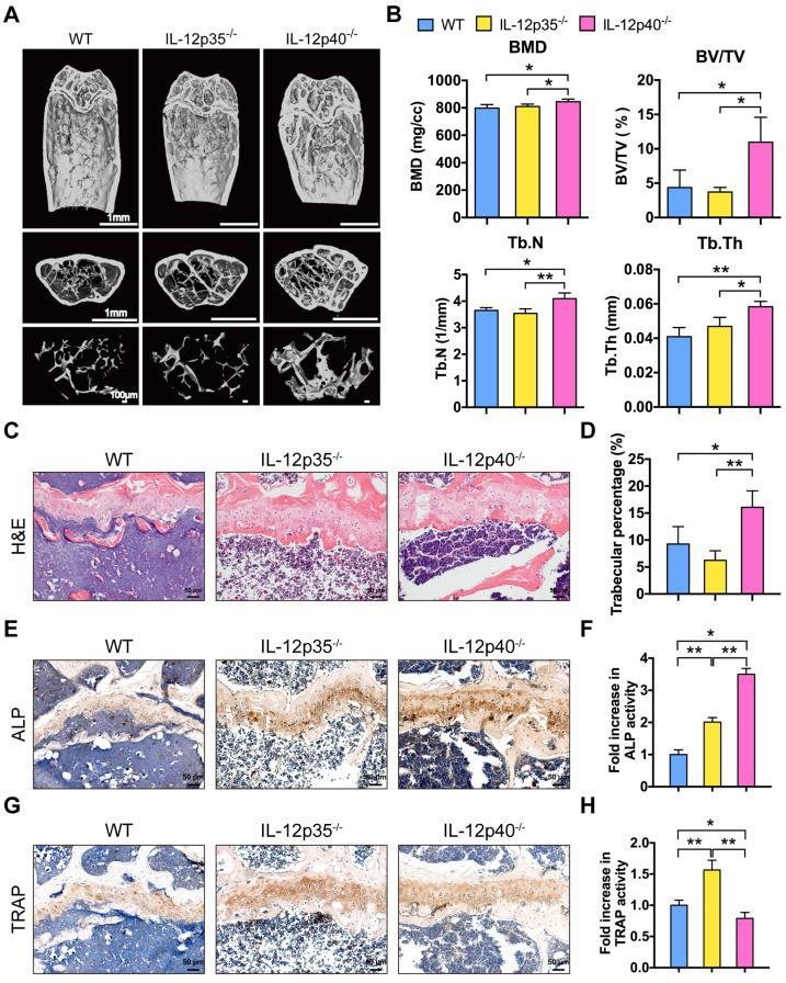 <t>IL-23</t> plays a critical role in aging-mediated bone loss. ( A ) Micro-CT images of the trabecular bone in the distal femoral metaphysis of 12-month-old male WT mice and age-sex matched IL-12p35 -/- and IL-12p40 -/- mice. n = 4 per group. Scale bar, 1mm (upper and middle panel), 100 µm (lower panel). ( B ) Micro-CT measurements for the indicated parameters in distal femurs. Bone mineral density (BMD), bone volume/tissue volume (BV/TV), trabecular numbers (Tb.N), and trabecular thickness (Tb.Th) were determined by micro-CT analysis. n = 4 per group. ( C ) The H E staining of femur sections from 12-month-old WT, IL-12p35 -/- , and IL-12p40 -/- mice were shown. n = 4 per group. Scale bar, 50 µm. ( D ) Trabecular percentage (%) was quantified via H E images from the groups described in C . n = 4 per group. ( E , F ) The immunohistochemical analysis ( E ) and quantification ( F ) of ALP expression in the distal femoral metaphysis. n = 4 per group. Scale bar, 50 µm. ( G , H ) The immunohistochemical analysis ( G ) and quantification ( H ) of TRAP expression in the distal femoral metaphysis. n = 4 per group. Scale bar, 50 µm. ALP, alkaline phosphatase; TRAP, tartrate-resistant acid phosphatase; WT, wild-type. Results are shown as mean ± S.D. * p