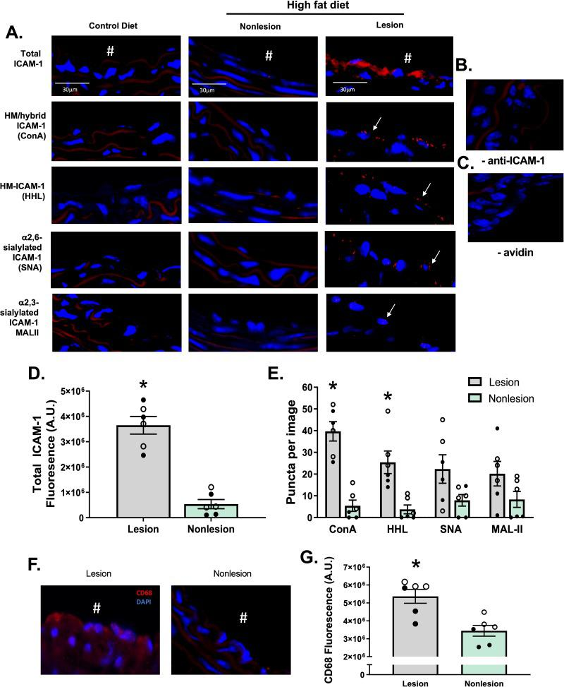 HM epitopes co-localize with ICAM-1 in high fat-induced mouse atherosclerosis. Total, HM / hybrid, α-2,6-sialylated, and α-2,3-sialylated ICAM-1 were measured in the innominate and left carotid arteries from ApoE-/- mice fed a normal or high fat diet. A) Shown are representative images of innominate arteries from paired lesion and non-lesion areas of the same vessel section. Red staining represents total ICAM-1, red puncta represent positive PLA staining for specific ICAM-1 N-glycoforms (indicated by arrows), and blue staining represents DAPI. # indicates the lumen of each vessel. Panels B and C show PLA staining of lesion areas when the anti-ICAM-1 antibody or avidin were excluded. Panel D shows total ICAM-1 staining in lesion versus non-lesion areas. *p